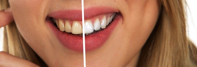 Die richtige Zahnpflege für die zweite Lebenshälfte